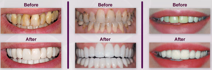 Mira Mesa Dental Images